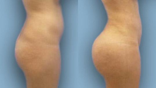 Brazilian Buttocks Augmentation