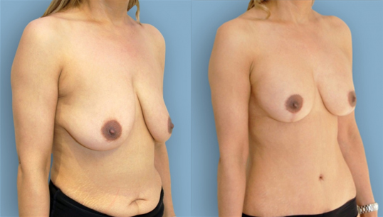 Breast lift and abdominoplasty