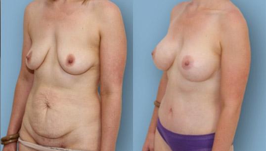 Abdominoplasty and breast augmentation