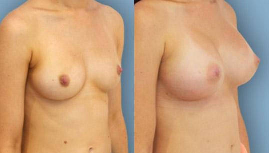 470cc extra high profile anatomic implant