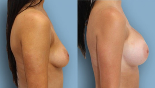 375 high profile anatomic implant