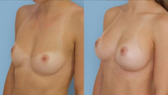 moderate profile 275cc anatomic augmentation