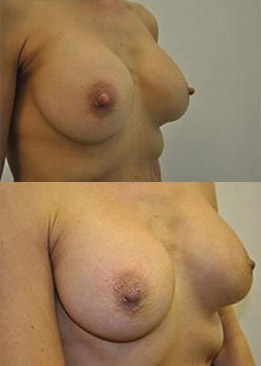 Breast Augmentation & Nipple Reduction
