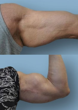 Biceps and Triceps Enhancement Implant