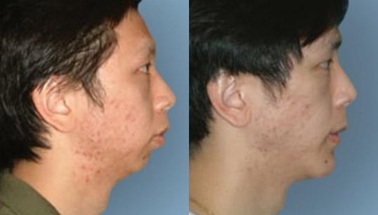 facial implant