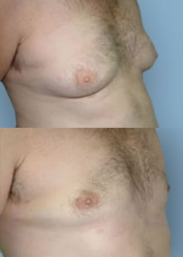 breast procedure