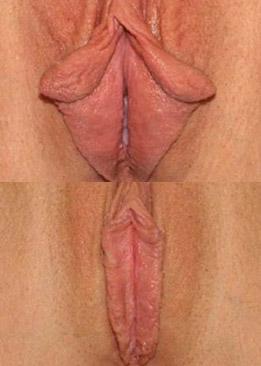 labioplasty