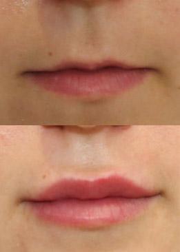 Non-Surgical Lip Augmentation