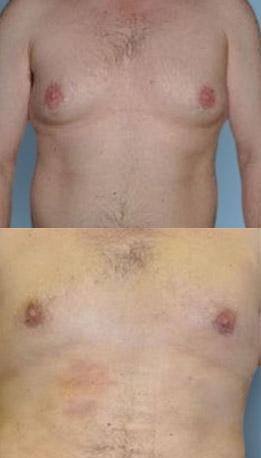 Male Gynecomastia (breast) lipo