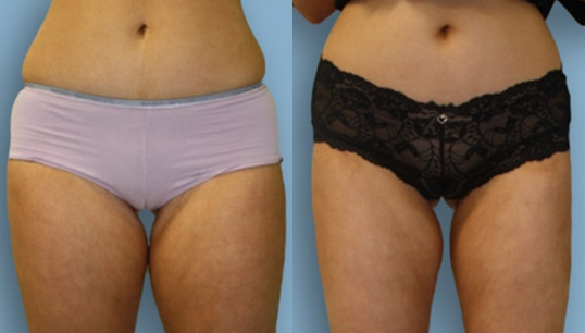 Abdominal/Flank and inner and outer thigh lipo