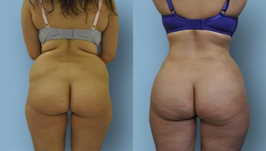 Back/flank, and inner thigh lipo