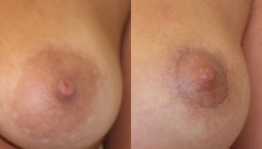 Nipple/Areolar Correction